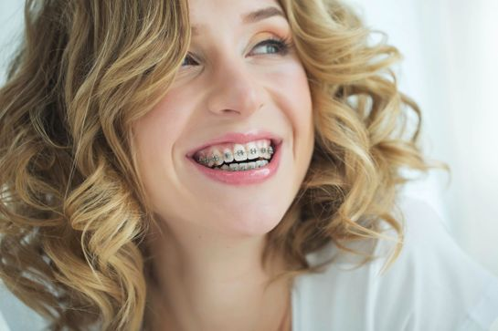 lady with teeth braces